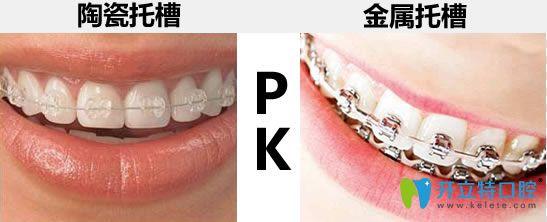 自锁牙套和普通牙套_详解陶瓷托槽矫正和金属托槽的区别 想知道牙套价格看这里 ...