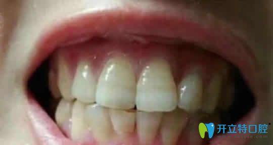 看我在福州同福医口腔花快2000元做的牙齿冷光美白效果如何