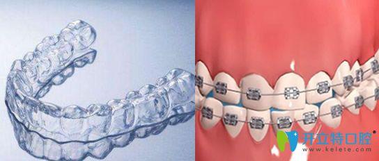 隐形牙套和钢牙哪个好?来看隐形牙套和钢牙效果+价格对比