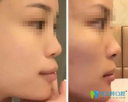 看妹子在南昌辉煌口腔做隐形龅牙矫正前后脸型对比照片