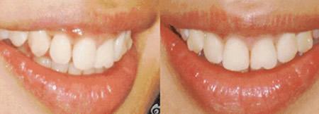记录我在上海美莱口腔戴第50副隐形牙套的经历 正畸进行中