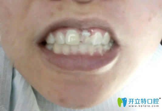 看天津德倍尔口腔张振生院长给我做的即刻种植牙效果怎样