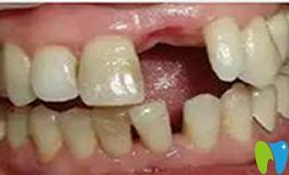 种植牙不好吗?谈谈我爸在武汉华美口腔种植牙感受