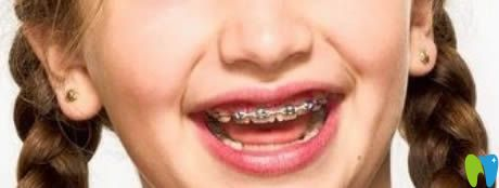 陈伟南医生解析儿童牙齿矫正的年龄