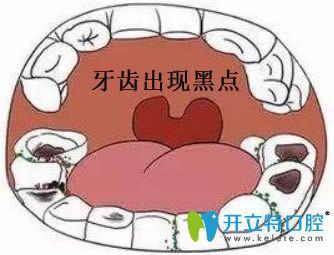 孩子牙齿上有黑点是怎么回事?武汉牙康安口腔告诉你该咋办