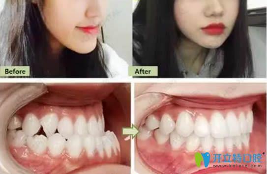成都爱雅美齿口腔牙齿矫正及门牙缺失种植牙案例图来啦!