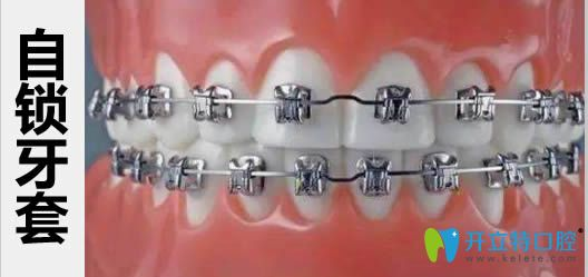 传统牙套和自锁牙套_普通牙套和自锁牙套哪个好?请看自锁和传统牙套区别及价格 ...
