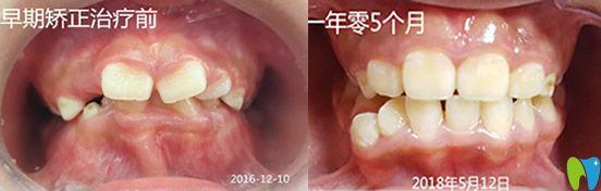 想了解孩子牙齿矫正时间 看桂林瑾帆口腔儿童正畸案例