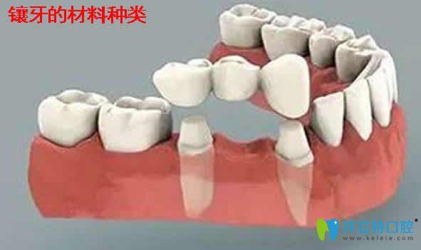 烤瓷牙什么材料好_镶牙多少钱_镶牙价格_镶牙多少钱一颗牙 - 开立特口腔
