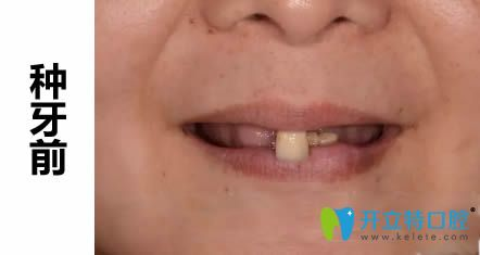 我看过四医大口腔医院价格表后去西安拜尔做了全口种植牙