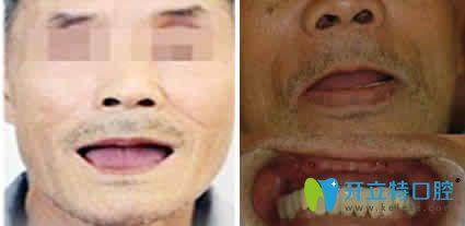 老爸在北京美冠塔口腔做即刻种植牙的效果 证明这钱花的值