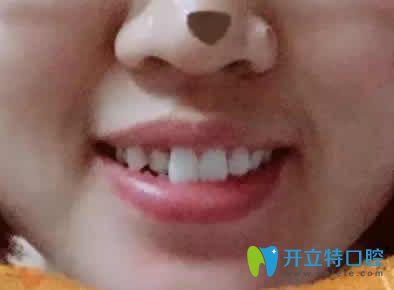 我在宁波恒美口腔做兔牙矫正后脸型变好看了 附前后对比照