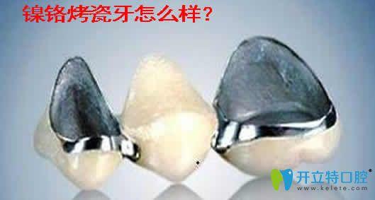 良心牙医介绍镍铬烤瓷牙好不好及镍铬烤瓷牙的副作用
