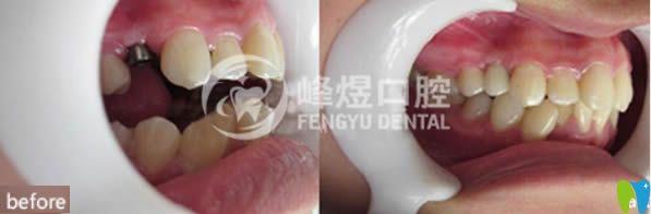 单颗牙缺失种植案例及对比效果图