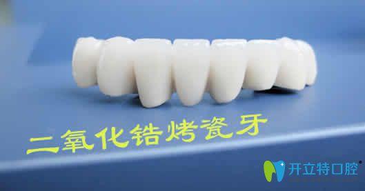 二氧化锆烤瓷牙致癌吗  看医生详解二氧化锆烤瓷牙的优缺点