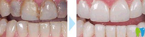 贝恩口腔牙齿美白效果图