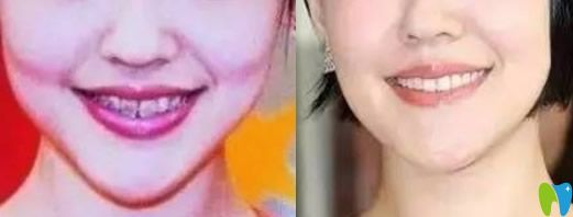 美艳性感的小S就曾做过牙齿矫正