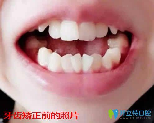 记录我30岁在湛江致美口腔做自锁陶瓷托槽矫正前后对照片