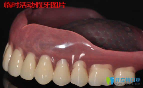 临时活动假牙图片