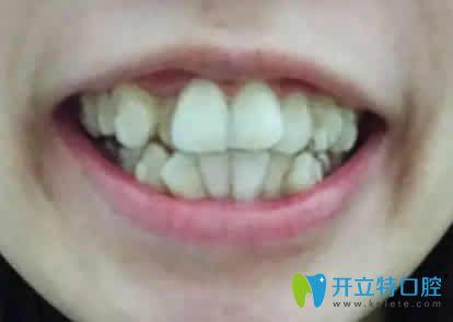 拆牙套了 来看下我在梅州泽山口腔做的隐形矫正效果怎么样