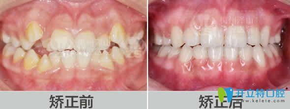 梅州泽山口腔牙齿矫正案例图