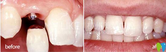 40岁徐先生单颗牙缺失在杭州美莱口腔做牙齿种植案例