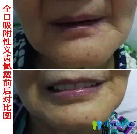 佩戴全口吸附性义齿前后对比图