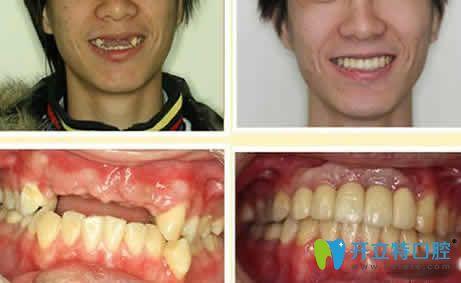 湛江南方口腔种植牙案例效果