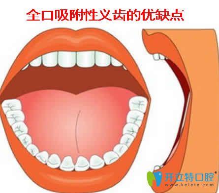 全口吸附性义齿的优缺点