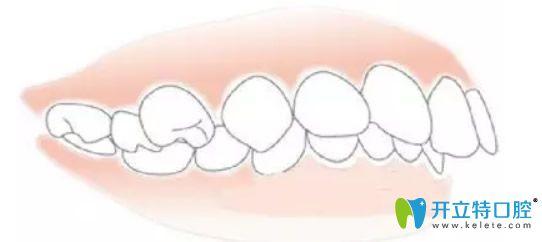 单纯牙性龅牙图片