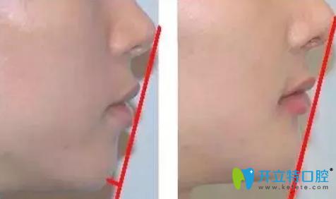 简单的判断龅牙是牙性还是骨性的方法