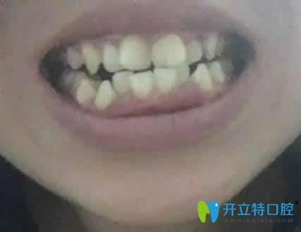 韶关优牙口腔好不好 看我拔四颗牙做矫正前后的脸型变化图