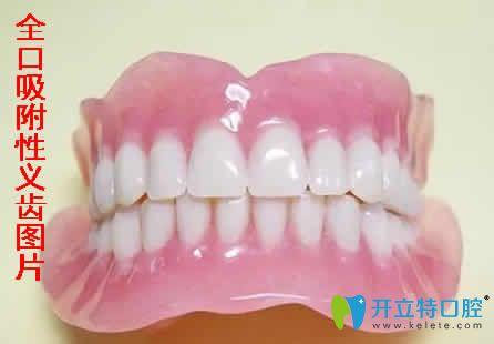全口吸附性义齿图片