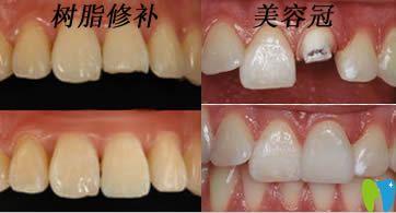 开立特口腔解答断牙如何修复