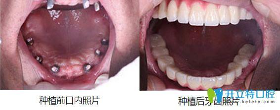 杭州美莱口腔好吗?顾客全口牙种植案例效果来验证