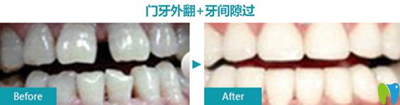 美莱口腔牙齿外翻+牙间隙过大修复案例前后效果对比图