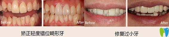 美莱牙科怎么样?杭州美莱口腔牙齿修复案例效果图来证明