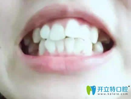 我在深圳希思口腔做凸嘴矫正一年的牙齿变化照片分享