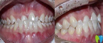 厦门亚欧齿科姚森分享前牙反合/后牙锁合的牙齿矫正案例