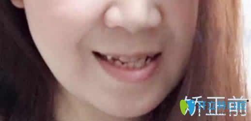 这是我虎牙拥挤在广州穗江口腔做隐形矫正15个月脸型变化图