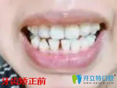 宁波正畸哪家好 用我在拜博拜尔口腔牙齿矫正效果揭晓