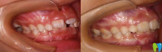 5岁男孩牙列不齐在广州圣贝口腔做MRC肌功能矫正案例