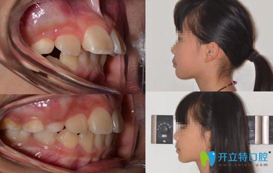 儿童龅牙矫正案例戴罗慕诱导矫正器矫正案例
