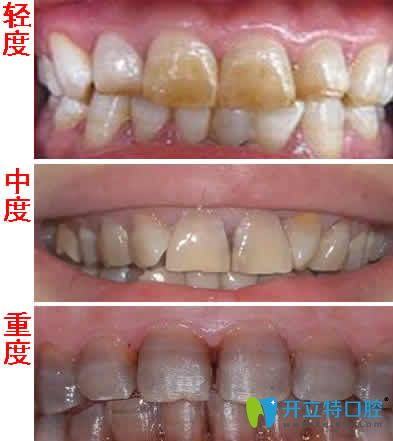 先看四环素牙不同程度图片再来了解四环素牙是怎么形成的