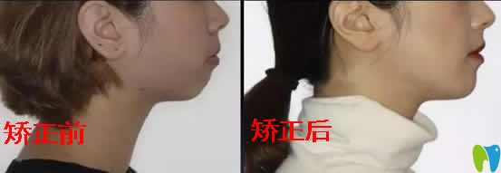 公布我龅牙+嘴巴合不拢 在广州优典口腔做牙齿矫正前后照片