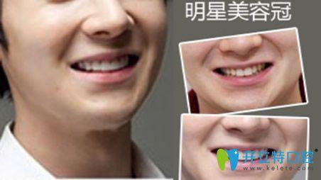 在福州格莱美口腔做明星美容冠修复牙齿案例