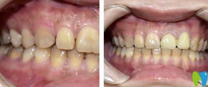 在重庆众植博仕口腔做完超薄牙贴面后可以放心露齿笑了