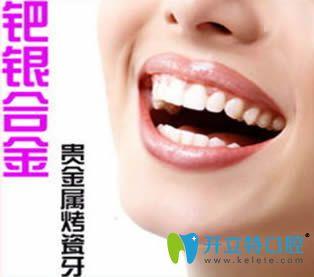 钯银烤瓷牙好不好?银钯合金烤瓷牙优缺点及价格和图片介绍