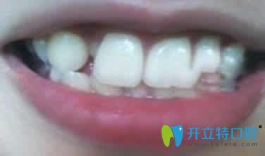 瞧瞧我牙齿稀疏 在深圳和美口腔做隐形牙齿矫正的效果如何