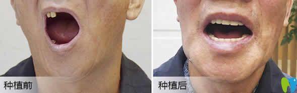 武汉优益佳口腔杨丕波种植牙案例效果图